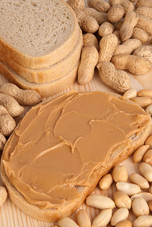 Peanut allergy is not the most common food allergy, but it is the most common food associated with severe allergic reactions