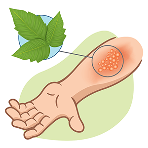 Poison ivy dermatitis is the most common contact allergy in the U.S. affecting approximately half of the population