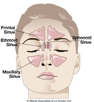 Sinusitis is the inflammation of the hollow sinus cavities around the cheek bones, found behind the nose and around the eyes.
