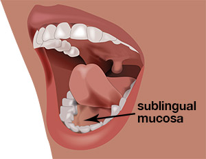 "The area under the tongue is referred to as the sublingual mucosa. This ""privileged"" area has special properties including the highest concentration of dendritic cells in the human body."