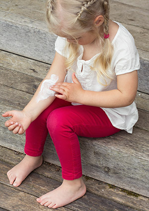 Eczema is a common, often chronic skin disease that can be caused by allergy.